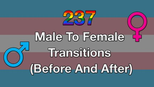 237 Male To Female Transitions (Before And After)